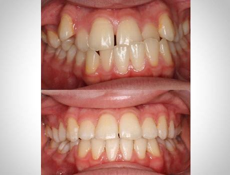 Spacing and Diastema